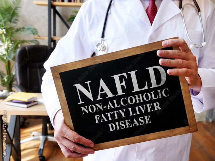 Non-Alcoholic Fatty Liver Disease (NAFLD) – Symptoms, Causes, Risk