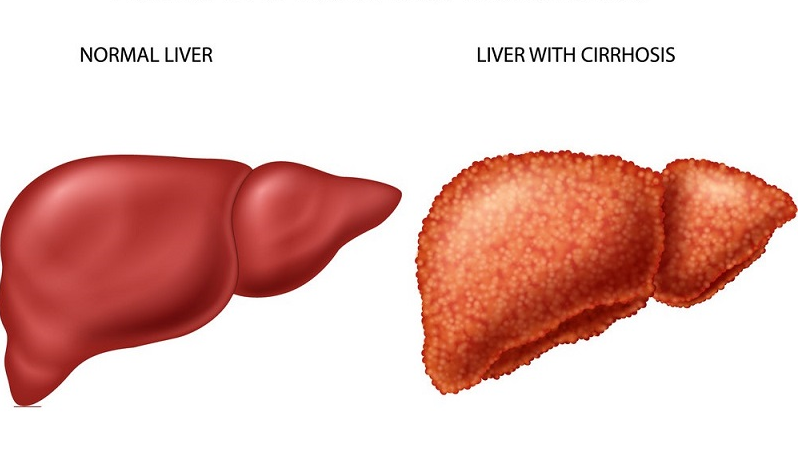 What is Cirrhosis of the Liver? Symptoms and Causes